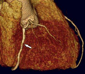 1 CT Herz Stenose